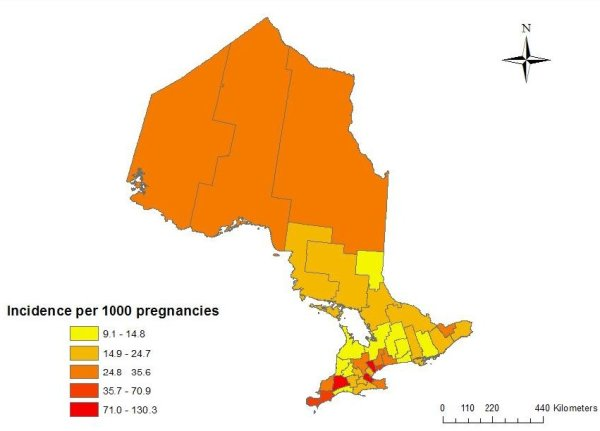 Age-standardized cumulative incidence of gestational diabetes by Public Health Unit area in Ontario (2005-2009)